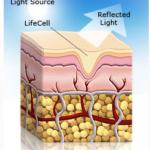 anti aging creams